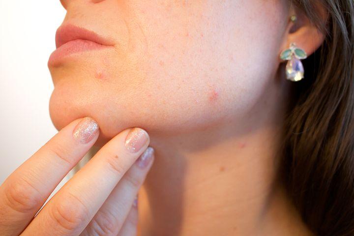 acne espinillas poros